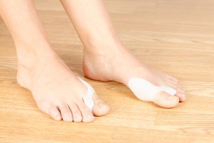 Do Bunion Correctors Work?